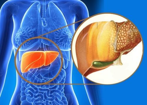 Как лечить печень: какой врач занимается этим органом, какие меры эффективны в домашних условиях, медикаментозные средства, продукты, как питаться