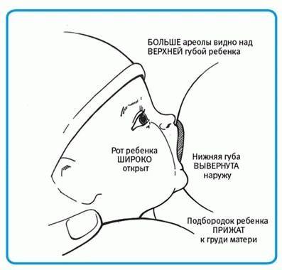 Мозоль на соске при грудном вскармливании: почему появляется, как избавиться и предупредить