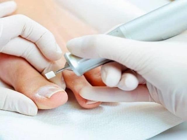 Медицинский педикюр при грибке ногтей: этапы и правила проведения процедуры