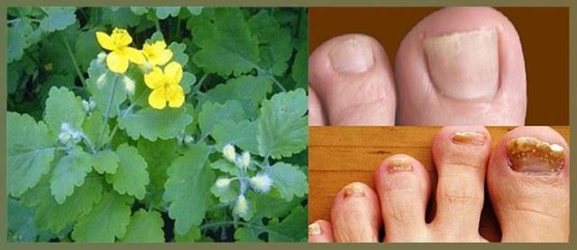 Чистотел от грибка ногтей на ногах: рецепты и отзывы о лечении в домашних условиях
