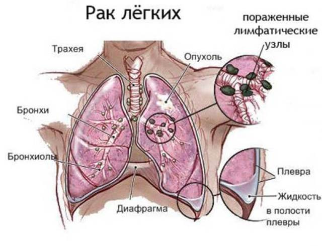 Как распространяются метастазы при раке легких