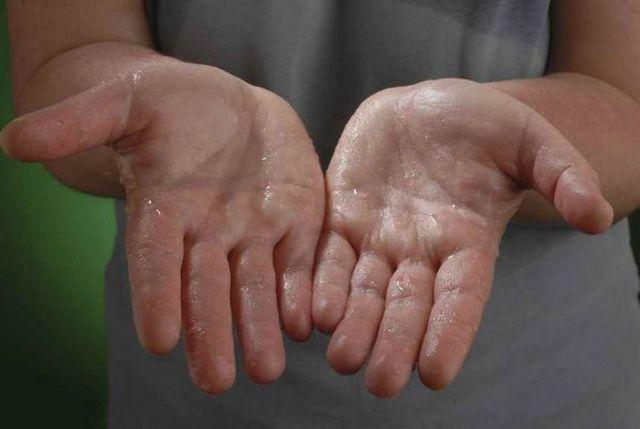 Повышенная потливость у мужчин: причины, лечение народными и традиционными средствами