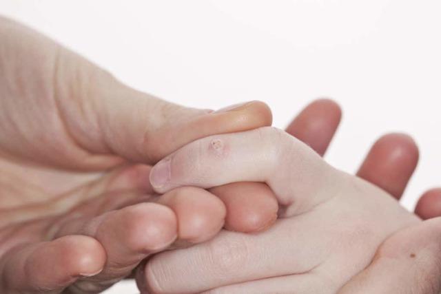 Папилломы у детей, у грудничка и новорожденного – как передается и лечится ВПЧ