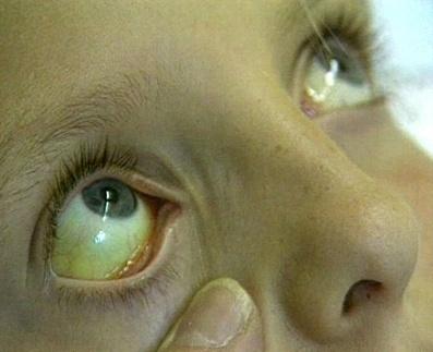 Синдром Криглера-Найяра: что это за болезнь, симптомы, причины, клинические рекомендации по лечению и прогноз жизни