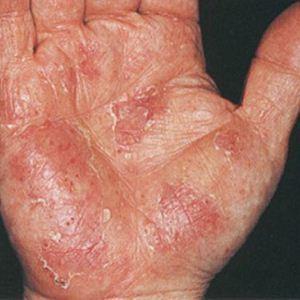 Аллергия на ногах и руках: фото у взрослых, симптомы, причины и методы лечения