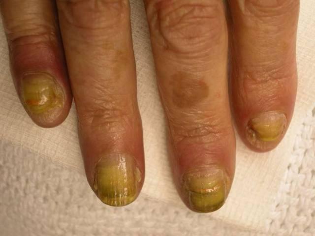 Желтые ногти на руках и ногах: причины, традиционные и народные методы лечения