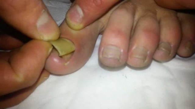 Как снять ноготь, пораженный грибком, в домашних условиях: чем размягчить и удалить