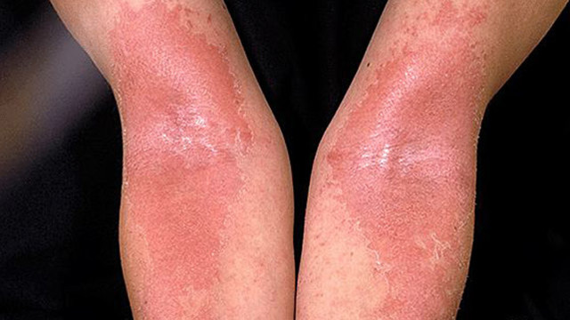 Аллергический дерматит: лечение у взрослых традиционными и народными средствами