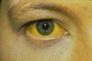 Симптомы и признаки рака печени у женщин: первые признаки на ранней стадии, симптомы, причины, лечение