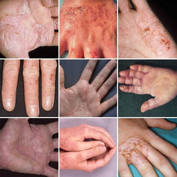Вирусная экзема у детей и взрослых: фото, признаки, как лечить и предупредить