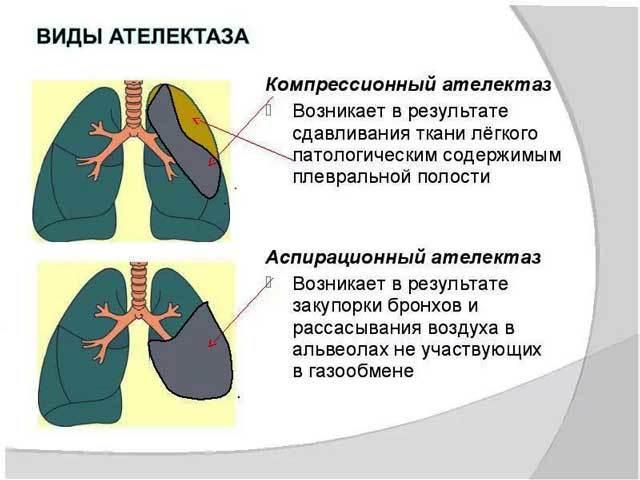 Осложнения Пневмонии: Причины, Симптомы, Методы Лечения