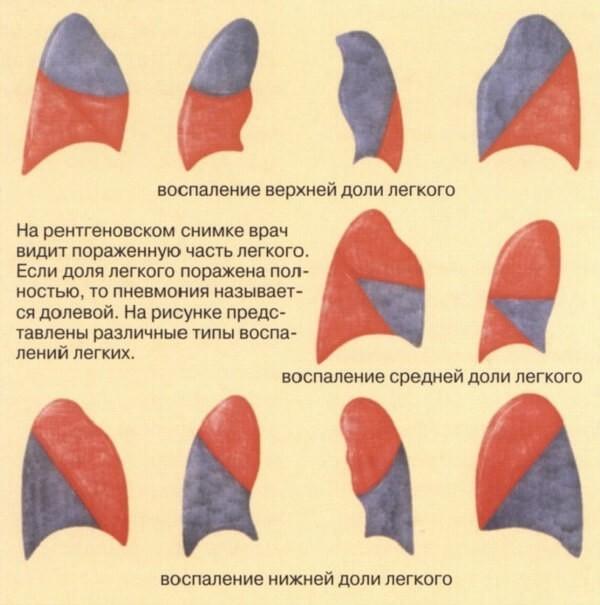 Двухсторонняя Нижнедолевая Пневмония: Симптомы, Диагностика