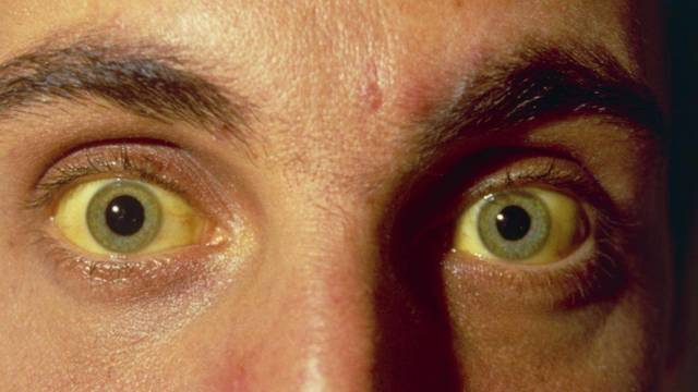 Как передается желтуха, можно ли заразиться
