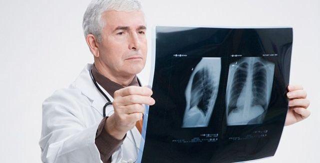 Лечение двусторонней пневмонии: методы традиционной терапии