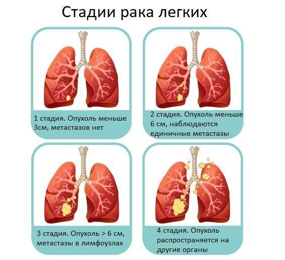 Аденокарцинома легкого: диагностика и лечение