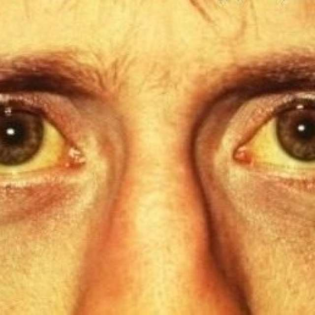 Где находится печень у человека: с какой стороны искать, слева или справа, фото с расположением, органы рядом