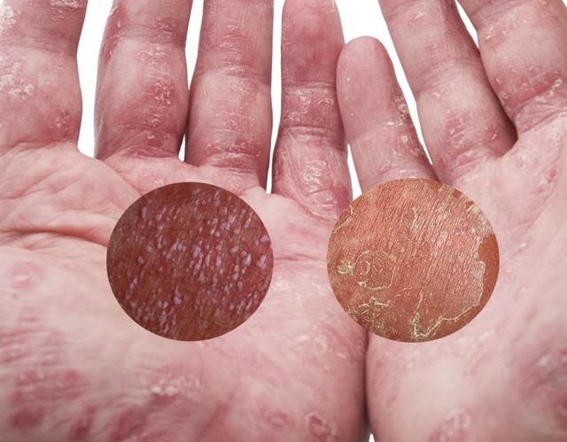 Пустулезный псориаз: причины, формы, традиционные и народные методы лечения