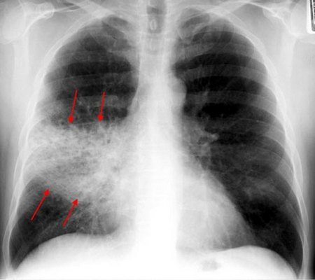 Стадии крупозной пневмонии: как развивается заболевание