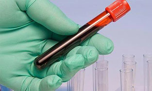 Лечится ли гепатит С: что говорят врачи о вероятности полного избавления от вируса, обзор отзывов, как долго проводится терапия у взрослых, стоимость курса