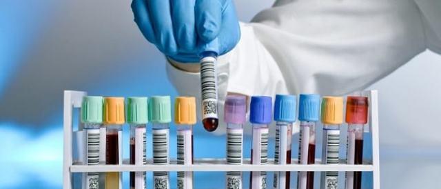 Какие анализы нужно сдать при псориазе: методы диагностики и подготовка к обследованию