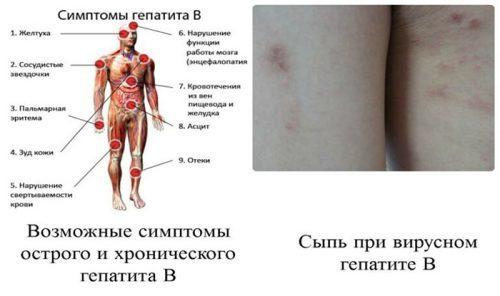 Инкубационный период гепатита B у взрослых и детей